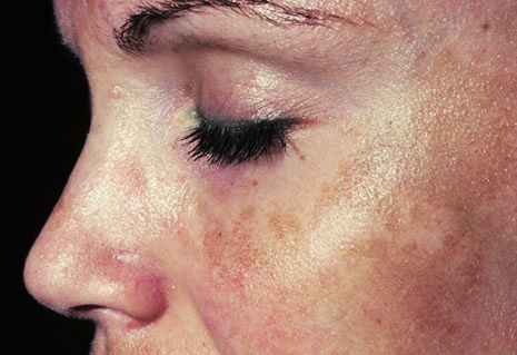 melasma_face_woman